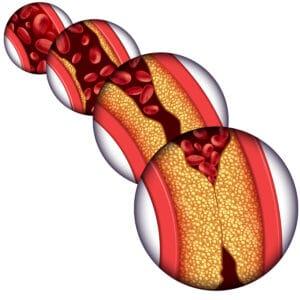 placa aterogénica