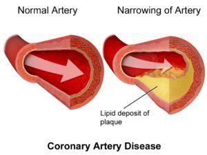Enfermedad cardiovascular. Aterosclerosis.