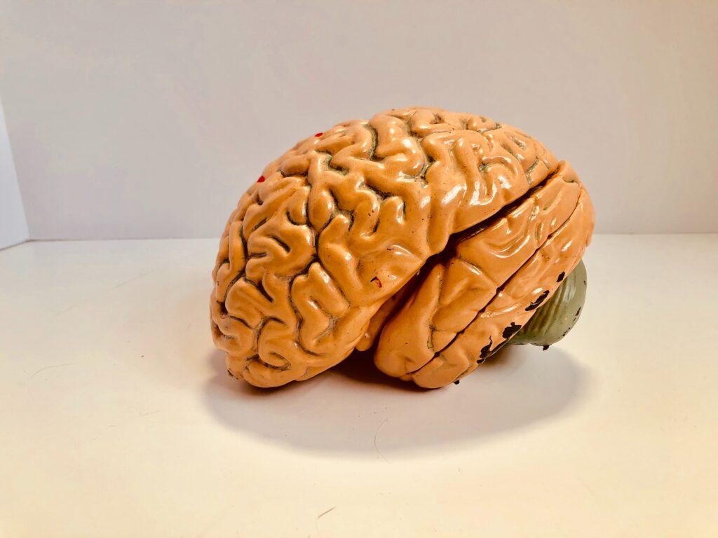 Áreas cerebrales afectadas en síndrome de Capgras