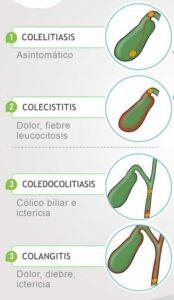 Diferencias de las patologías de la vesícula biliar
