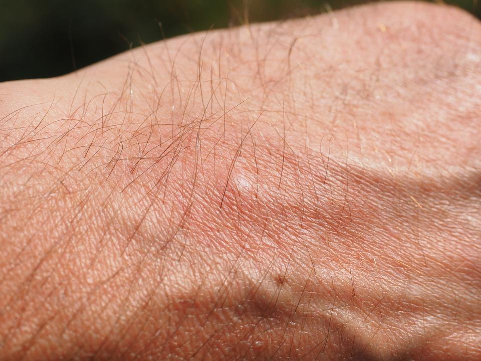 Alergia en mano por uso de látex