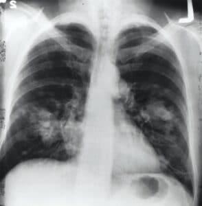 Diagnóstico de los pulmones