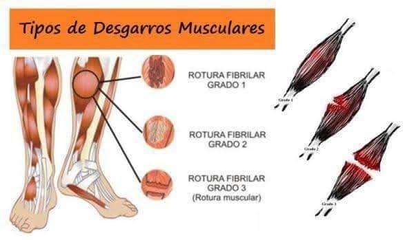 TIPOS DE DESGARRE MUSCULAR