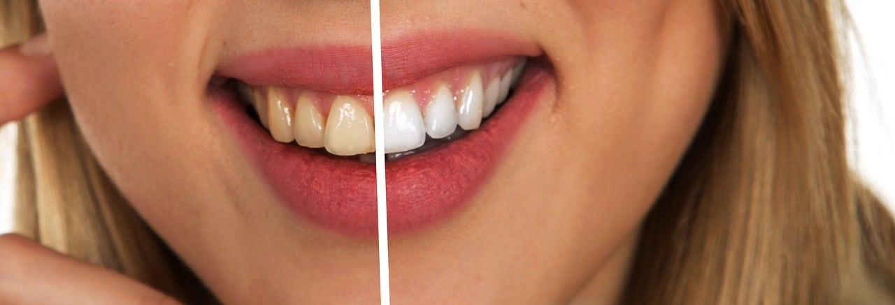 ¿qué es una endodoncia?