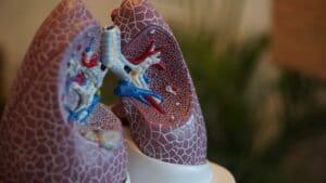 Pulmones bronquiectasia
